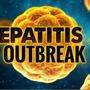 Food service workers diagnosed with Hepatitis A in Kanawha, Putnam counties