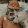 2-year-old boy attacked by pit bull, undergoes 16-hour surgery to repair scalp