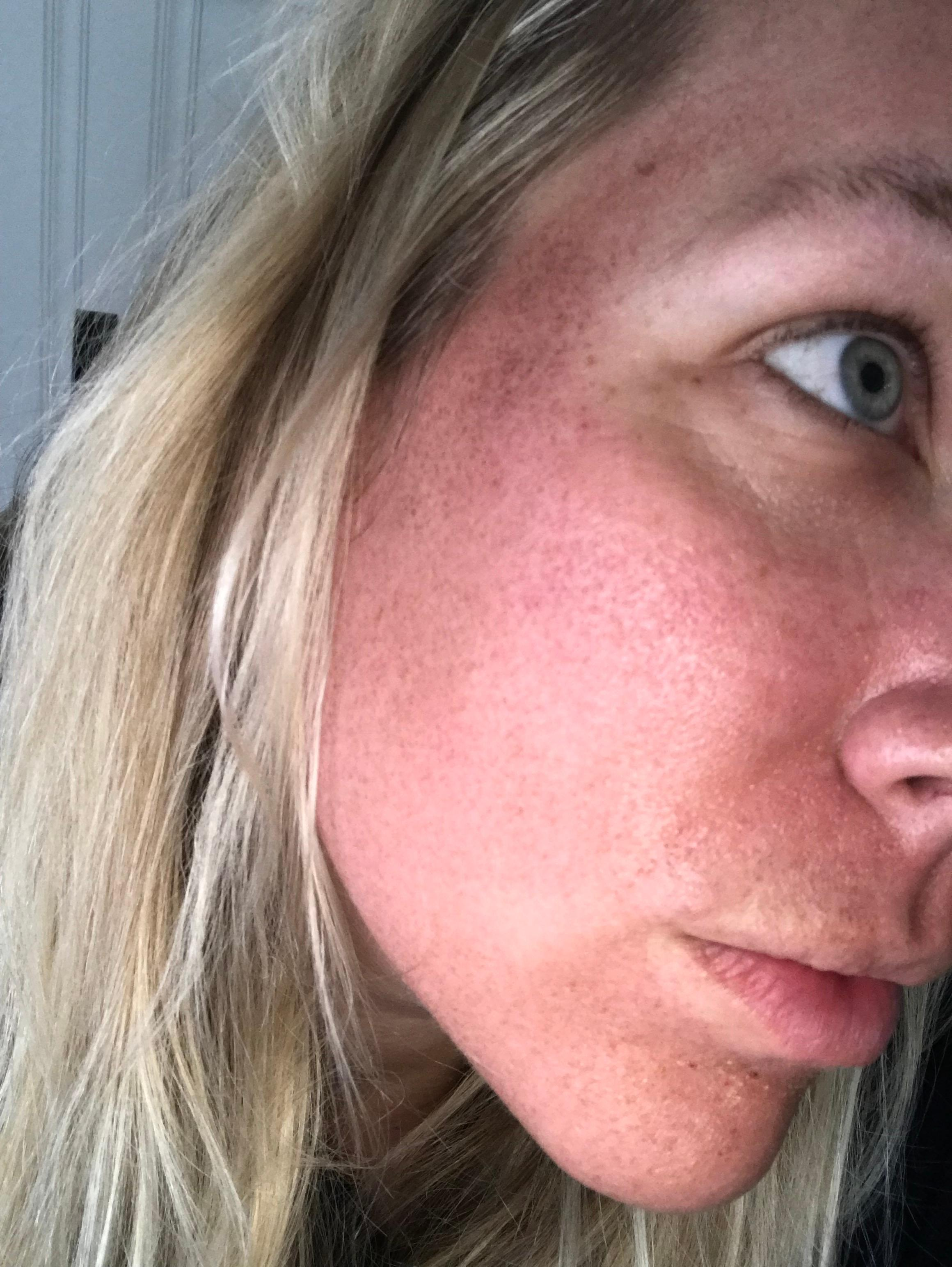 <p>MENDS started to show, they look like a bunch of tiny freckles.{&nbsp;} This is totally normal and doesn't hurt at all. (Image: Kate Neidigh){&nbsp;}</p>