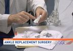 Doc Talk | Ankle replacement surgery