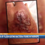 Warning of flesh-eating bacteria found in Fairhope