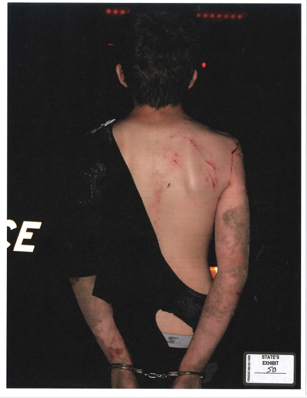 A photograph of Michael Bever with scratches on his back after his arrest for killing his parents and three siblings. (KTUL)